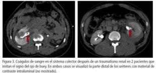 Urologo en Cali Signo de Ojo de Buey después del Trauma Renal