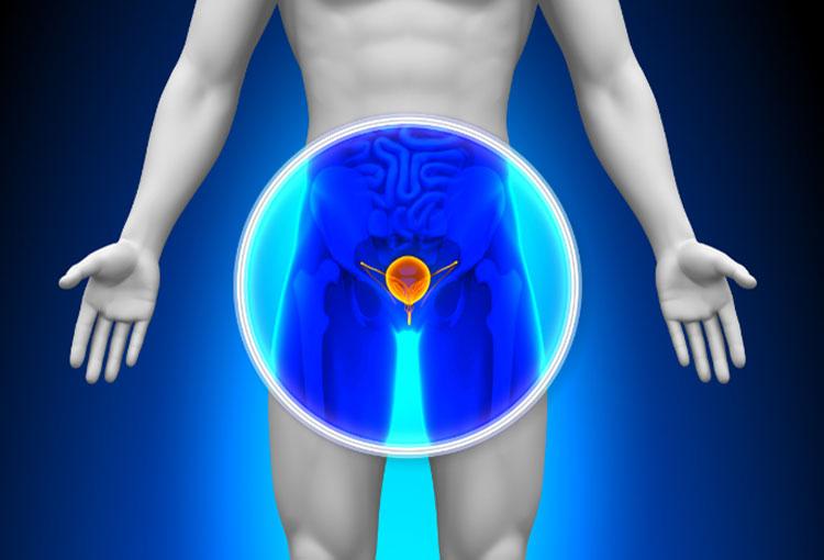 ¿Qué causa el cáncer de próstata?