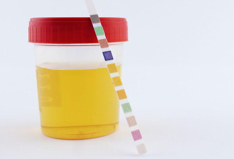 ¿Qué significa el color de la orina y cuándo debo ir con el urólogo?